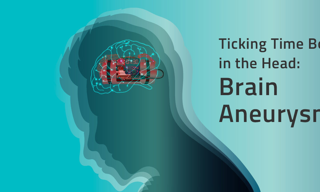 Ticking Time Bombs in the Head: Brain Aneurysms